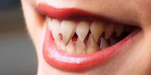 Клыки и зубы для Хэллоуина